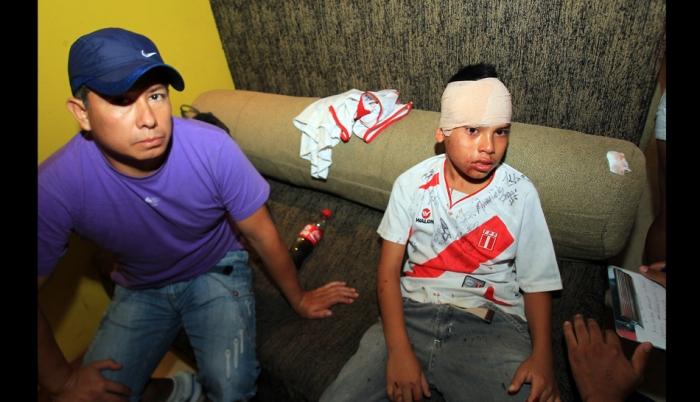 COBARDE ATAQUE CHILENO A UN NIÑO DE 10 AÑOS